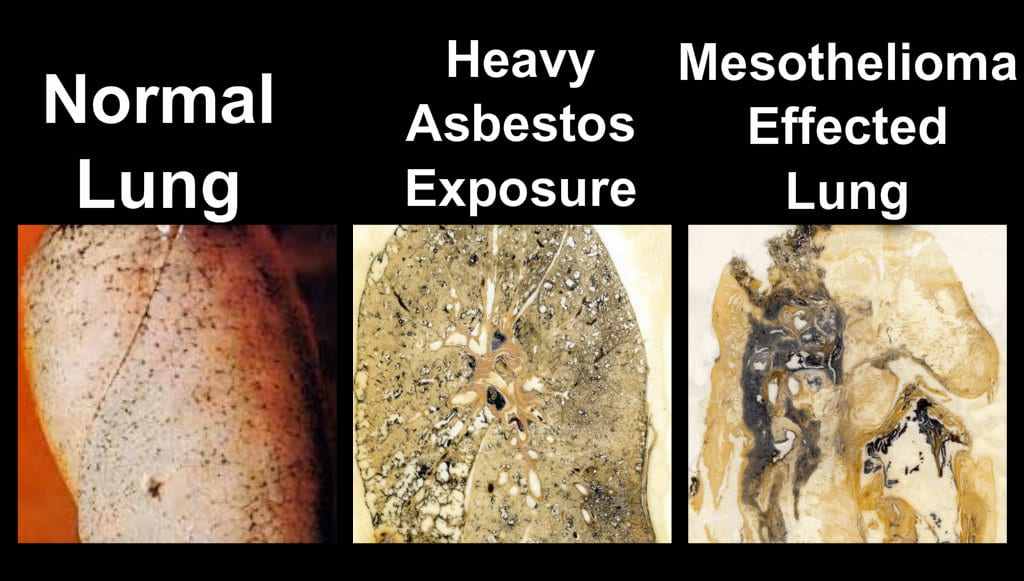 asbestos removal services in kitchener ontario